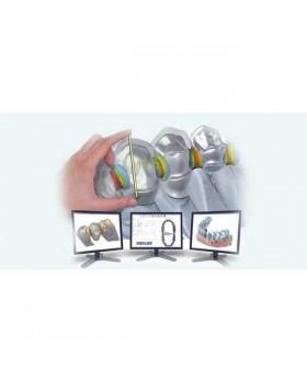 ExoCad - многофункциональное программное обеспечение для CAD-стоматологии