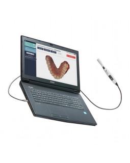Condor - интраоральный сканер, ноутбук в комплекте