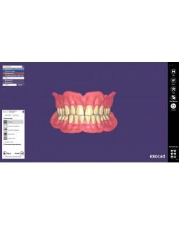 Exocad Full Denture Module - модуль для создания полносъемных протезов
