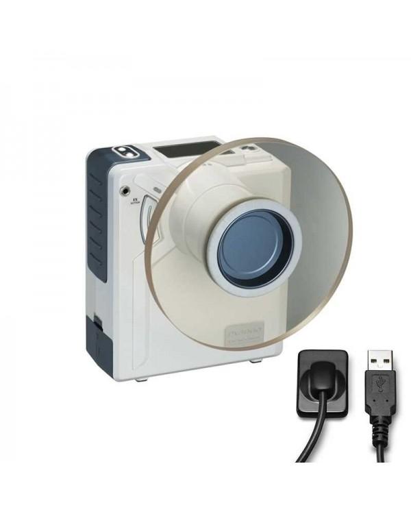 Комплект DX-3000 и Mediadent RSV-HD - высокочастотный портативный дентальный рентген с визиографом