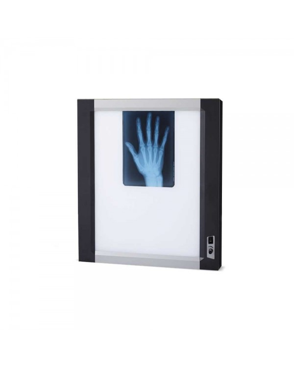 Негатоскоп флуоресцентный однокадровый